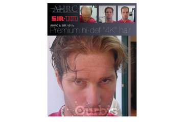 SIR 101 Hair Restoration Specialists in Vancouver: Men's Hair Replacement