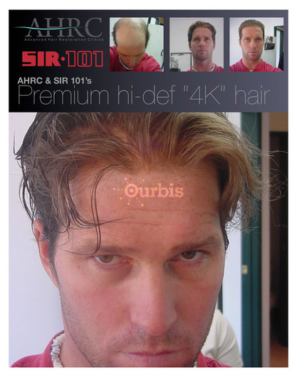 Sir 101 Hair Restoration Specialists Vancouver Bc Ourbis