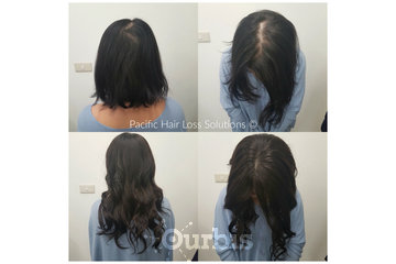 Pacific Hair Extensions & Hair Loss Solutions in Vancouver: Silk base closure hair piece system with remy hair extensions