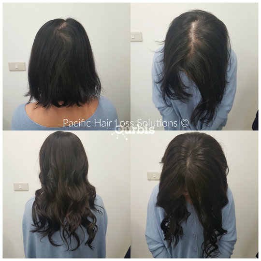 Pacific hair extensions hair loss solutions vancouver bc ourbis pacific hair extensions hair loss solutions in vancouver silk base closure hair piece system pmusecretfo Image collections