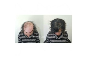 Pacific Hair Extensions & Hair Loss Solutions in Vancouver: Alopecia hair loss solution with hair piece