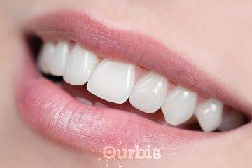 Clinique Dentaire Chokron et Garneau à unknown: Parodontie