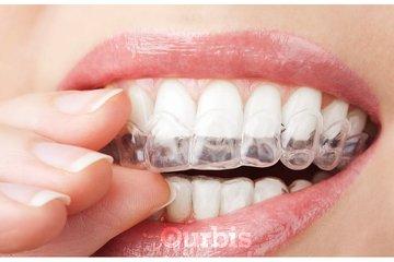 Clinique de Denturologie Michel Puertas in Brossard: blanchiment-des-dents-insérer-français