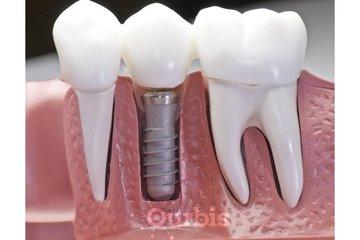 Clinique de Denturologie Michel Puertas à Brossard: couronne-dentaire-sur-implant-dentaire-français