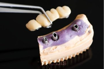 Clinique de Denturologie Michel Puertas à Brossard: pont-dentaire-sur-implants-dentaire