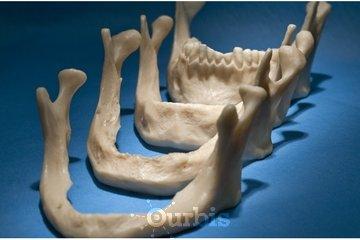 Clinique de Denturologie Michel Puertas in Brossard: regarnissage-dentaire-mou-ou-dur-résorption-osseuse-modèles-français