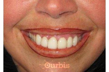 Maquillage Permanent Et Pourquoi Pas Moi! à L'ASSOMPTION: lèvres après