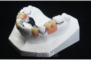 Clinique de Denturologie Michel Puertas in Brossard: prothèse-dentaire-partielle-du-haut-en-metal-vitallium-dentier-partiel-français