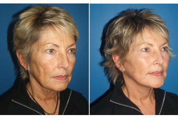 Age-Less Plastic Surgery and Laser Clinic