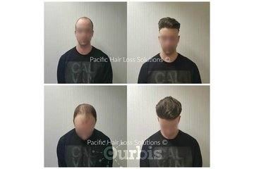 Pacific Hair Extensions & Hair Loss Solutions in Vancouver: Young male hair loss solution with hair piece