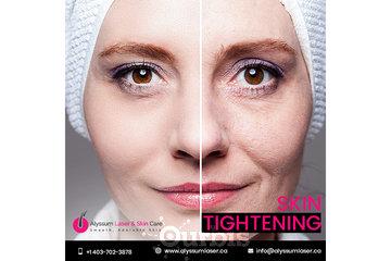 Alyssum Laser & Skin Care à calgary: Skin Tightening Calgary