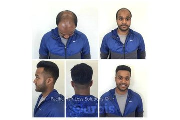 Pacific Hair Extensions & Hair Loss Solutions in Vancouver: Lace front hair piece system for young male hair loss