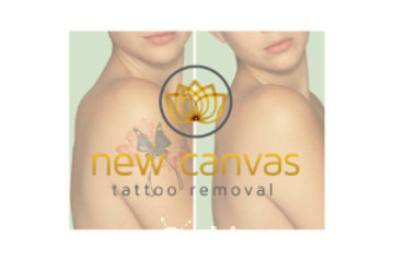New Canvas Tattoo Removal