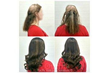Pacific Hair Extensions & Hair Loss Solutions in Vancouver: Full lace wig hair piece system for trichotillomania hair loss