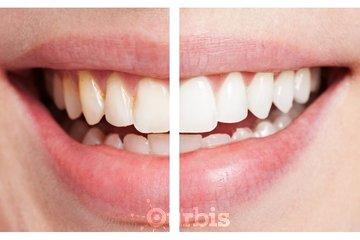 Clinique de Denturologie Michel Puertas in Brossard: blanchiment-des-dents-résultat-français