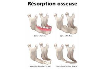 Clinique de Denturologie Michel Puertas in Brossard: regarnissage-dentaire-mou-ou-dur-résorption-osseuse-français