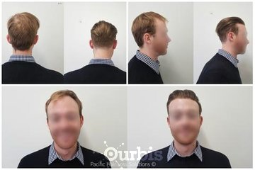 Pacific Hair Extensions & Hair Loss Solutions in Vancouver: Thin skin poly hair piece system for young male hair loss