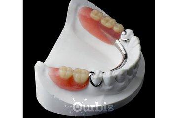Clinique de Denturologie Michel Puertas in Brossard: prothèse-dentaire-partielle-du-bas-en-metal-vitallium-dentier-partiel-français
