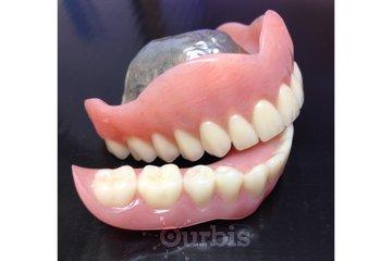 Clinique de Denturologie Michel Puertas in Brossard: prothèse-dentaire-complète-du-haut-palais-métallique-dentier-français