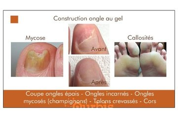 Clinique en soins des pieds
