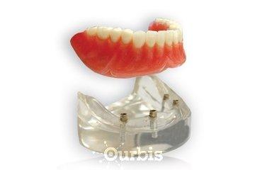Clinique de Denturologie Michel Puertas à Brossard: prothèse-dentaire-complète-amovible-du-bas-sur-4-implants-dentier