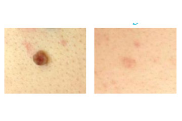 Clear Complexions Skin Therapy in surrey