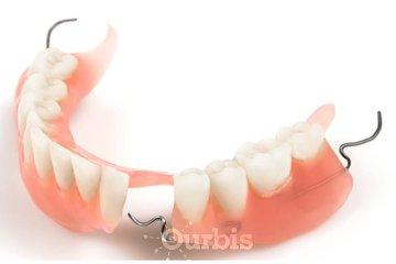 Clinique de Denturologie Michel Puertas à Brossard: prothèse-dentaire-partielle-du-bas-en-acrylique-dentier-partiel-français